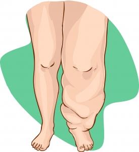 A gyógyhatású nyirokmasszázzsal megszüntethető a nyiroködéma, a végtag duzzanat.